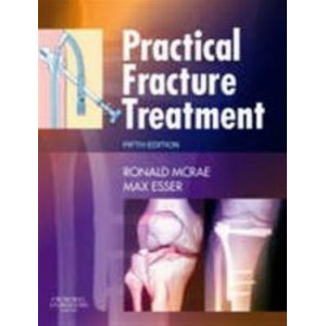 Practical Fracture Treatment 5E