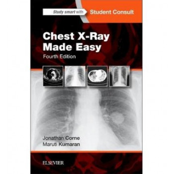 Chest X-Ray Made Easy 4E