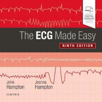 ECG Made Easy 9E