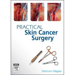 Practical Skin Cancer Surgery: From Fundamentals to Advanced