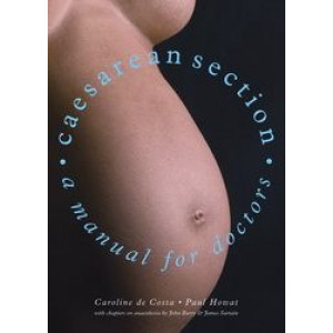 Caesarean Section - A Manual for Doctors
