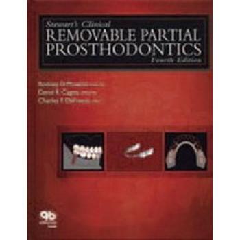 Stewart's Clinical Removable Partial Prosthodontics 4E