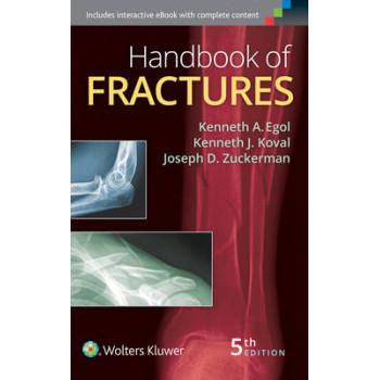 Handbook of Fractures 5E