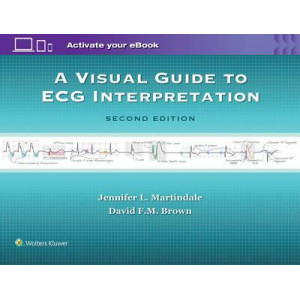 A Visual Guide to ECG Interpretation 2E