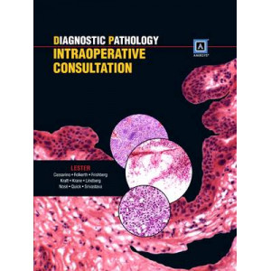 Diagnostic Pathology: Intraoperative Consultation