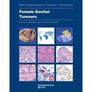 WHO classification of female genital tumours (5th Edition, 2020)